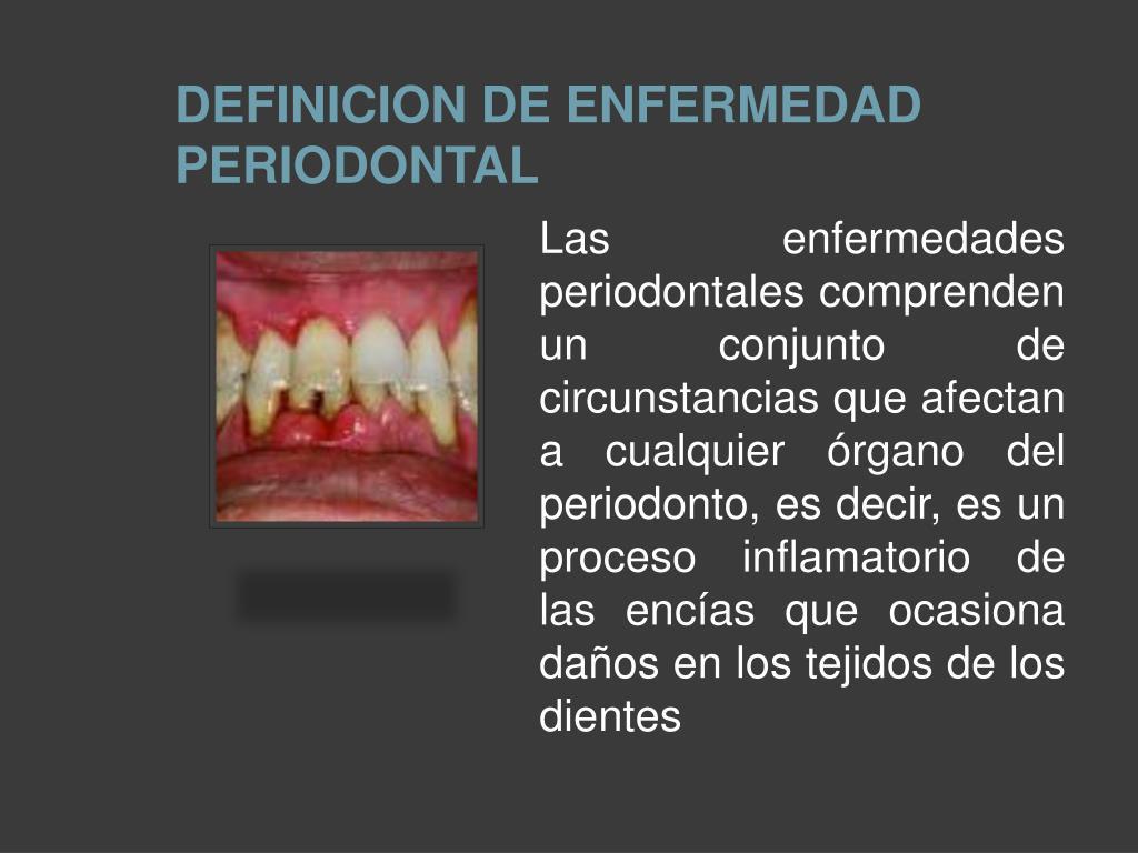 DEFINICION DE ENFERMEDAD PERIODONTAL