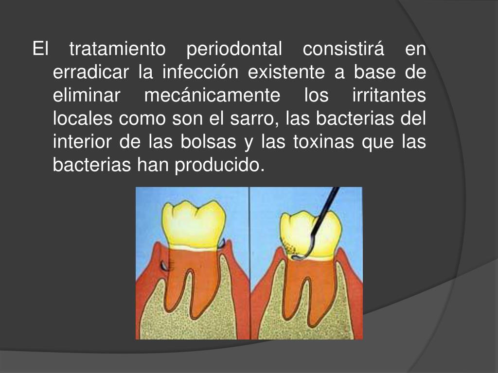 El tratamiento periodontal consistirá en erradicar la infección existente a base de eliminar mecánicamente los irritantes locales como son el sarro, las bacterias del interior de las bolsas y las toxinas que las bacterias han producido.