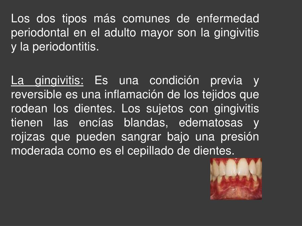 Los dos tipos más comunes de enfermedad periodontal en el adulto mayor son la gingivitis y la periodontitis.
