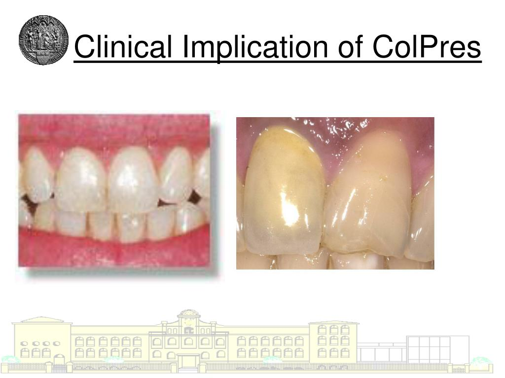 Clinical Implication of ColPres