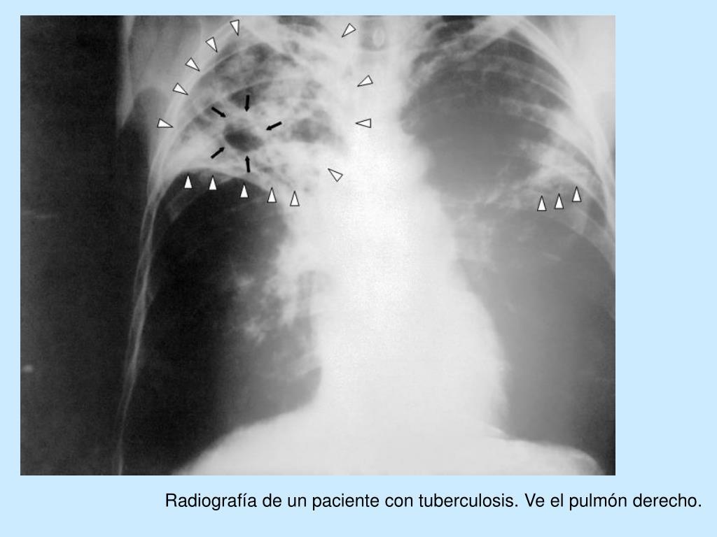 Radiografía de un paciente con tuberculosis. Ve el pulmón derecho.