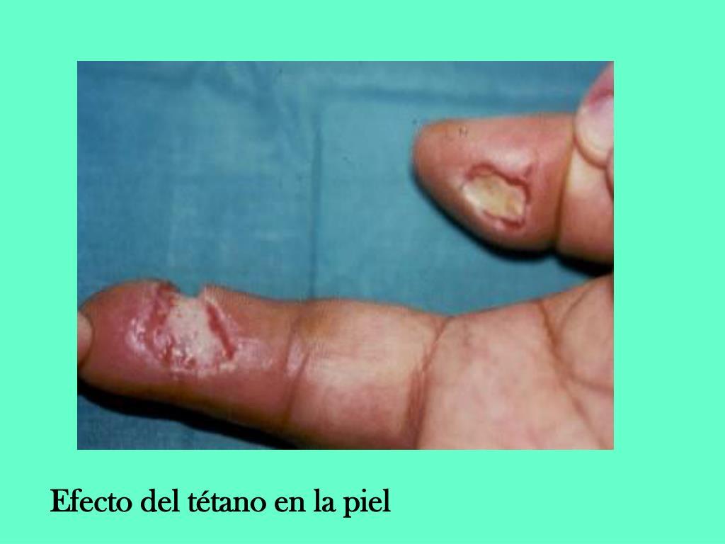 Efecto del tétano en la piel