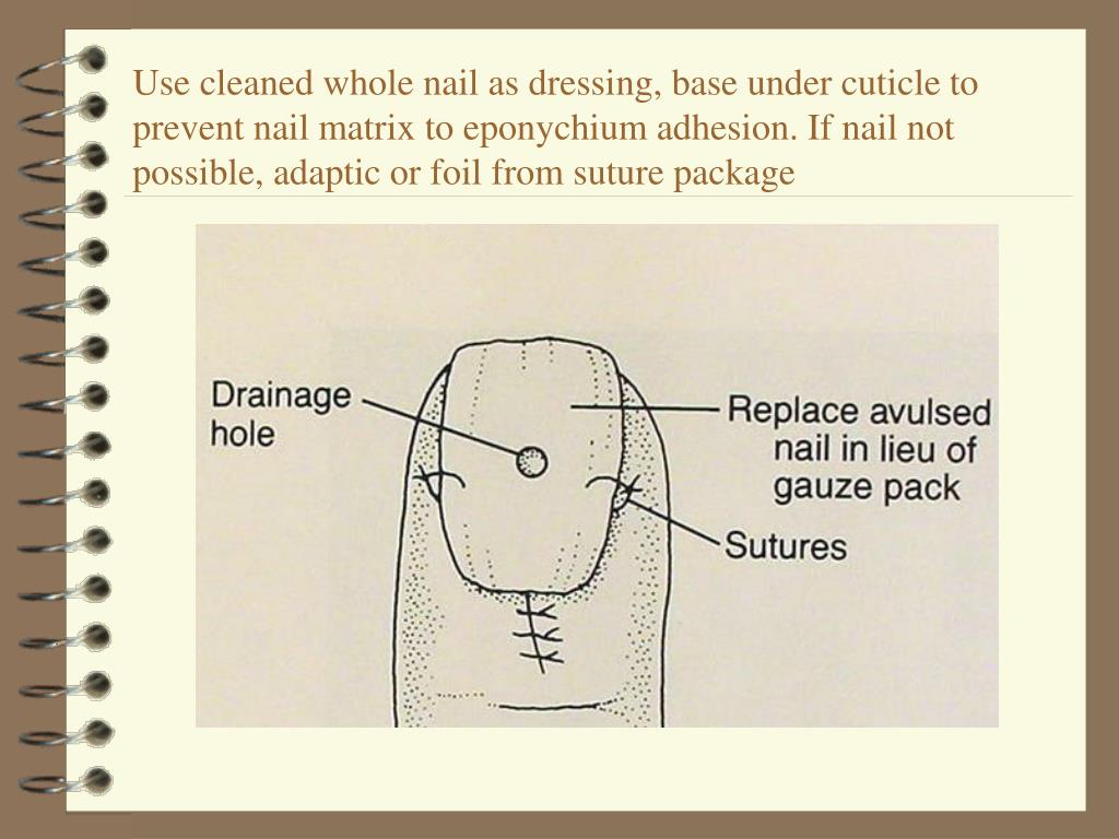 Use cleaned whole nail as dressing, base under cuticle to prevent nail matrix to eponychium adhesion. If nail not possible, adaptic or foil from suture package