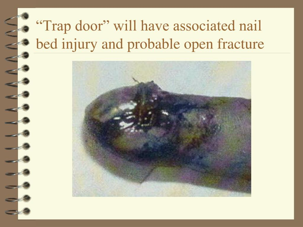 """""""Trap door"""" will have associated nail bed injury and probable open fracture"""