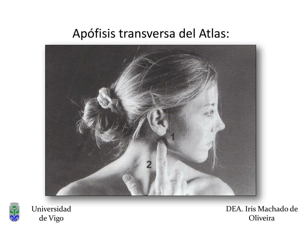 Apófisis transversa del Atlas: