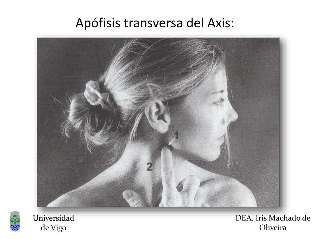 Apófisis transversa del Axis: