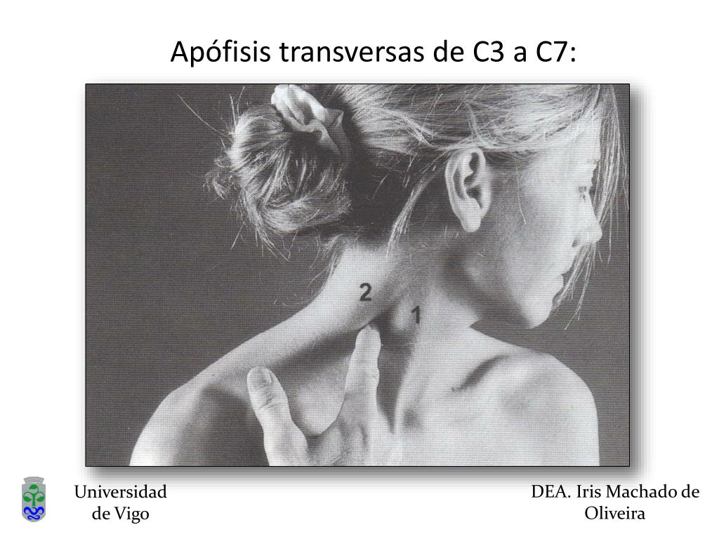 Apófisis transversas de C3 a C7: