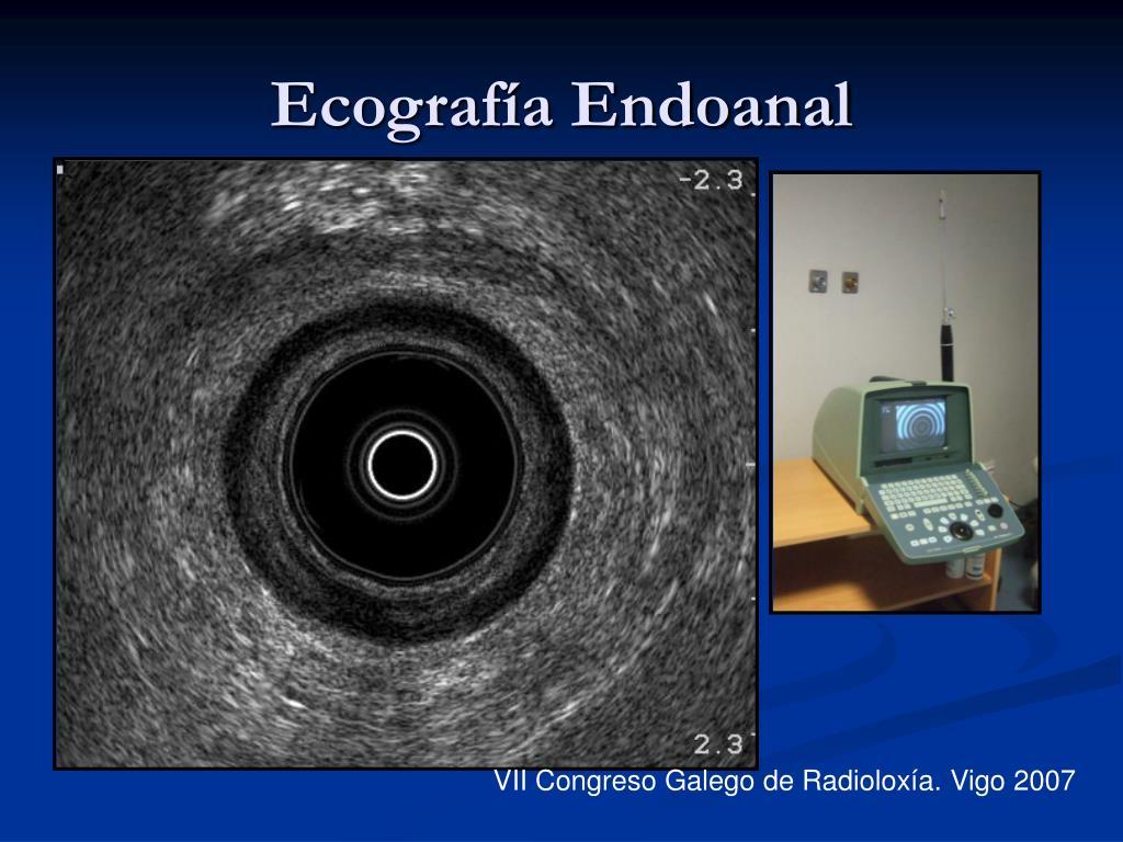 Ecografía Endoanal