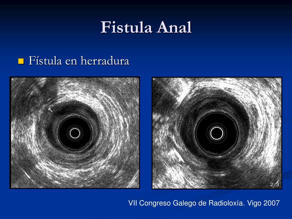 Fistula Anal