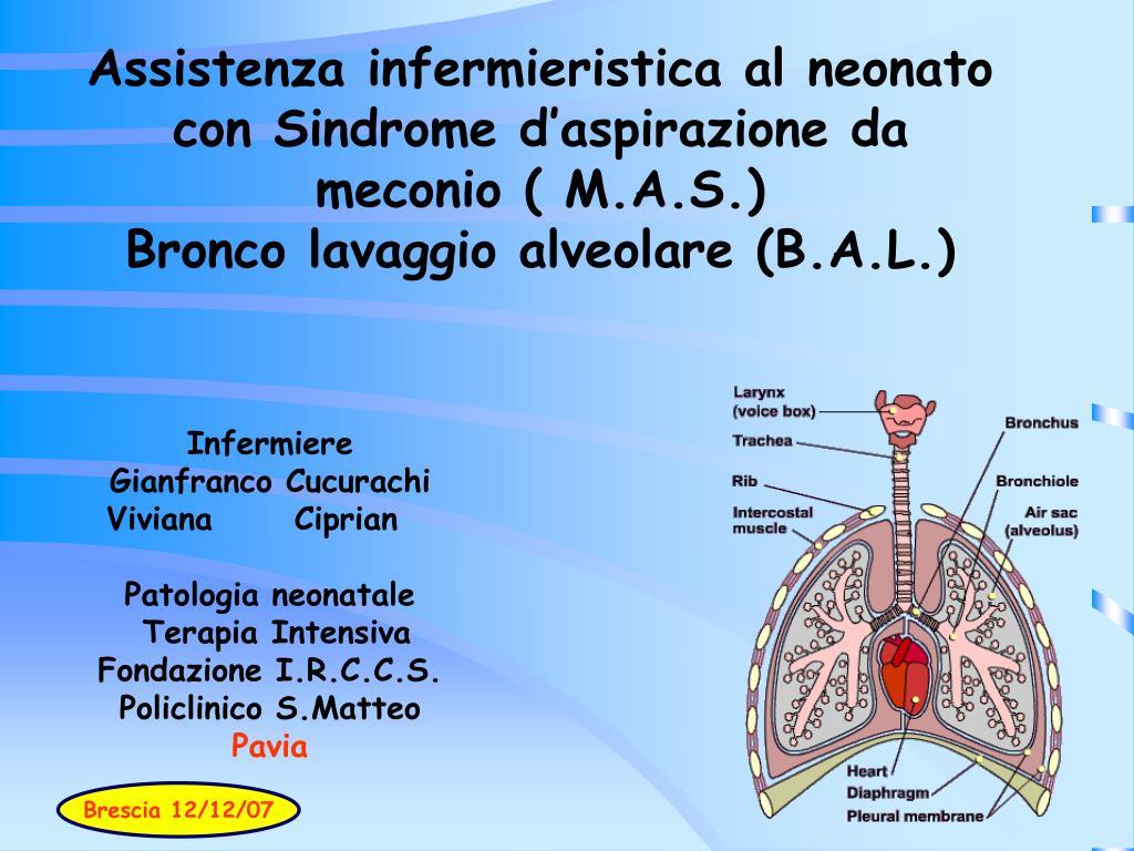 Assistenza infermieristica al neonato con Sindrome d'aspirazione da meconio ( M.A.S.)