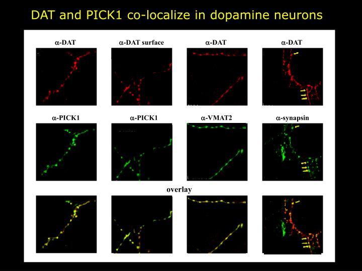 DAT and PICK1 co-localize in dopamine neurons