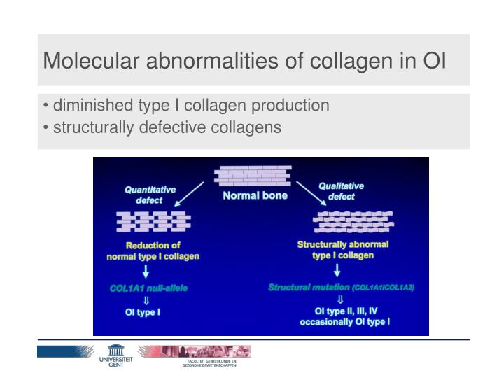 Molecular abnormalities of collagen in OI