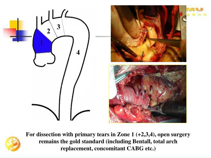 For dissection with primary tears in Zone 1 (+2,3,4), open surgery remains the gold standard (including Bentall, total arch replacement, concomitant CABG etc.)