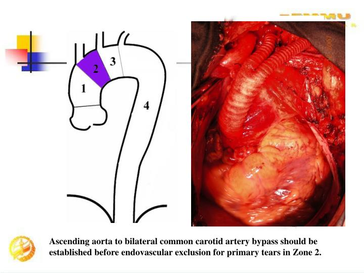 Ascending aorta to bilateral common carotid artery bypass should be established before endovascular exclusion for primary tears in Zone 2.