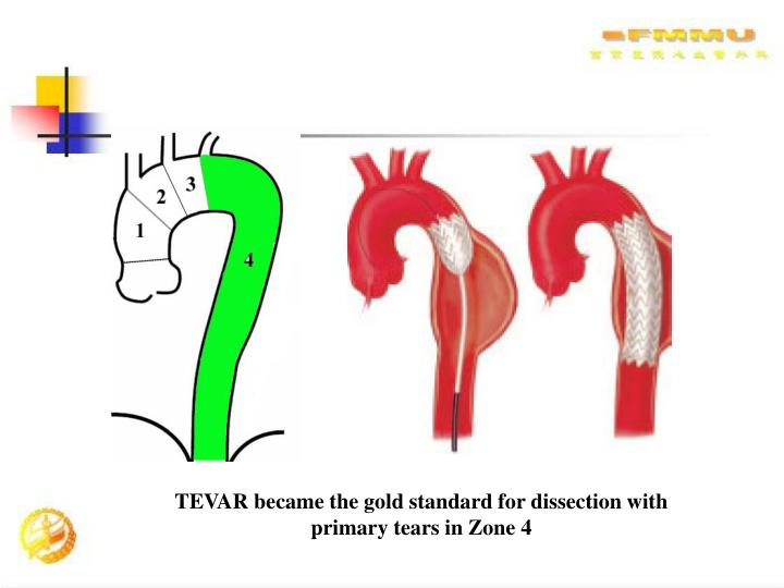 TEVAR became the gold standard for dissection with primary tears in Zone 4