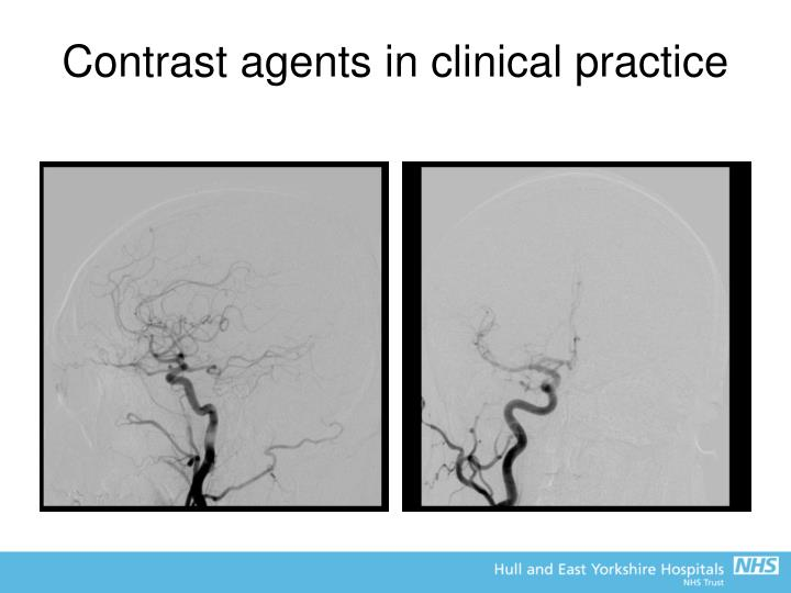 Contrast agents in clinical practice