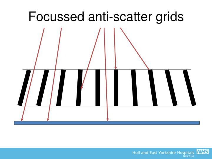 Focussed anti-scatter grids