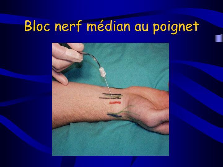 Bloc nerf médian au poignet