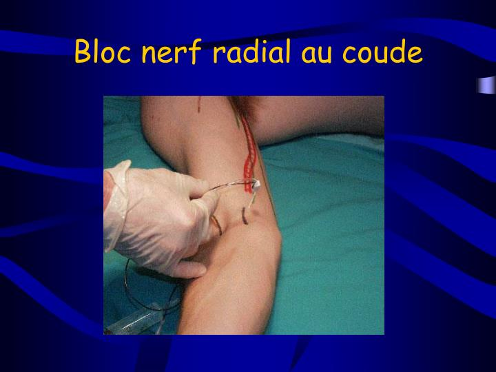 Bloc nerf radial au coude