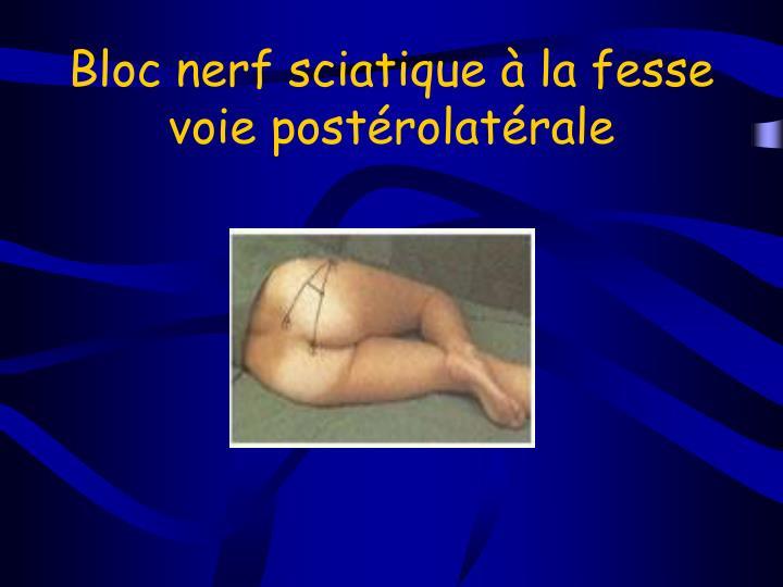 Bloc nerf sciatique à la fesse voie postérolatérale