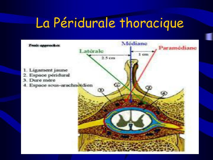 La Péridurale thoracique