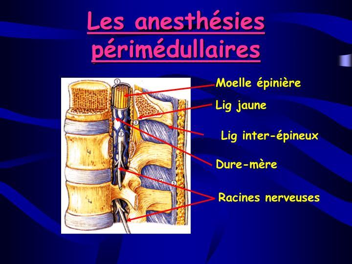 Les anesthésies périmédullaires