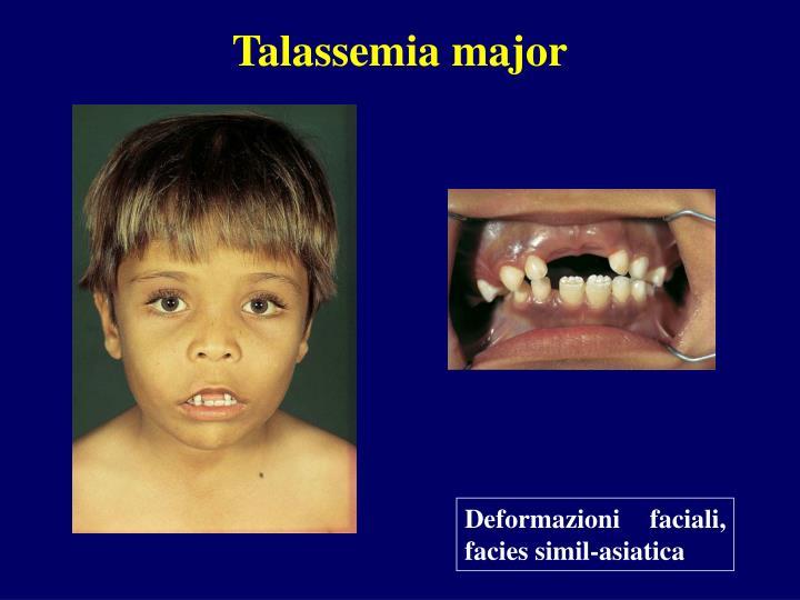 Talassemia major