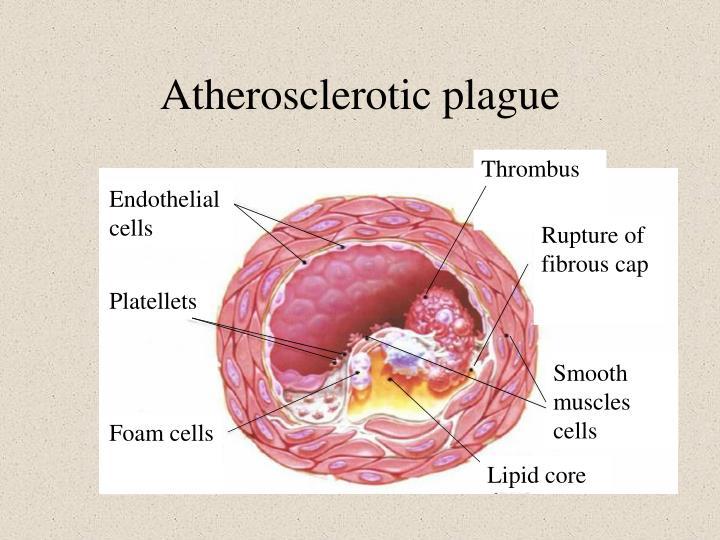 Atherosclerotic plague