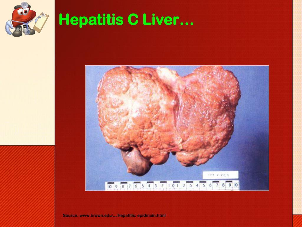 Hepatitis C Liver…