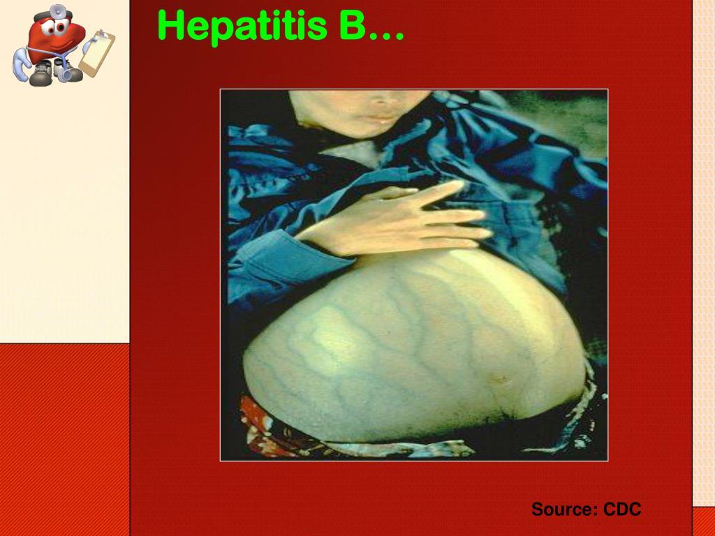 Hepatitis B…