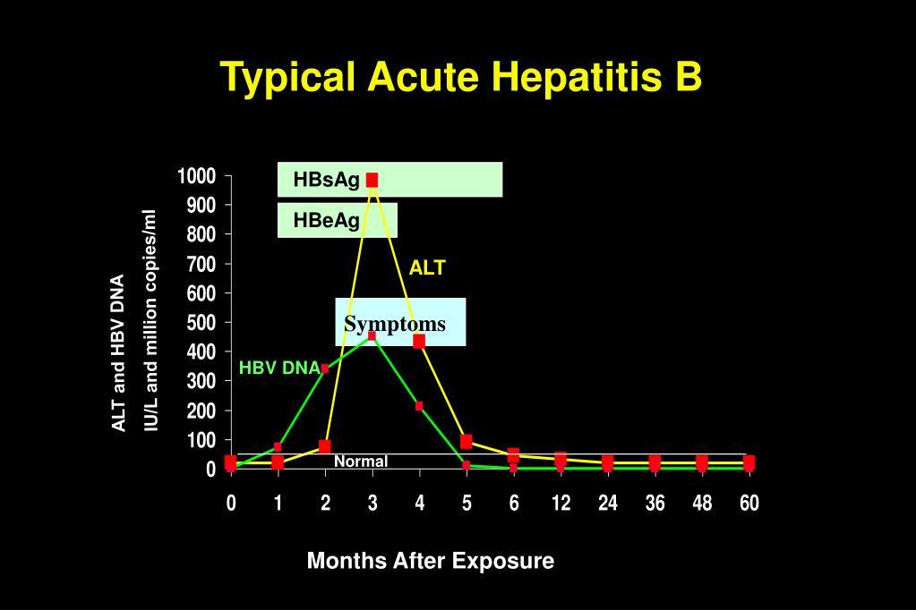 Typical Acute Hepatitis B