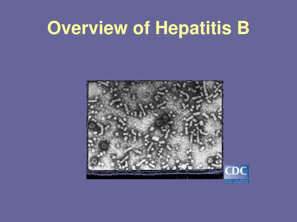 Overview of Hepatitis B