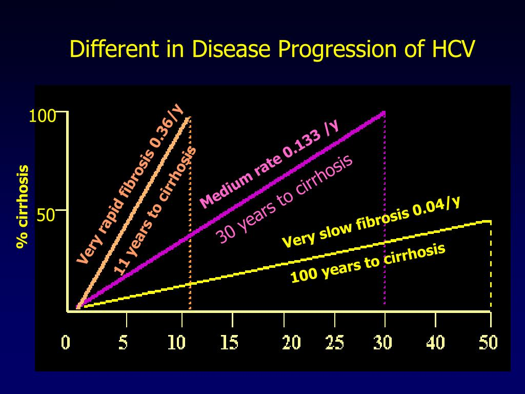 Different in Disease Progression of HCV