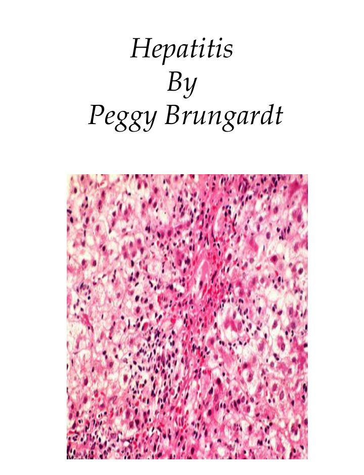 Hepatitis by peggy brungardt