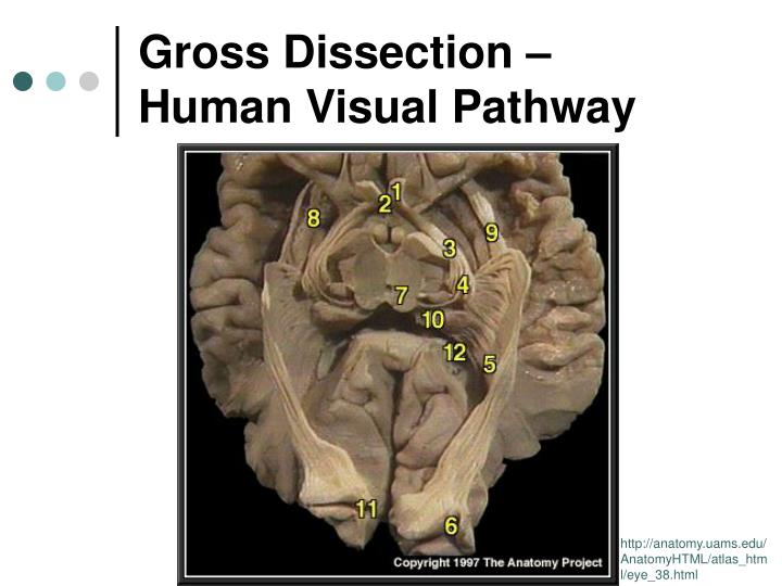 Gross Dissection –