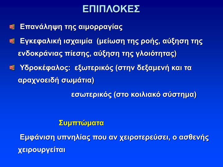 ΕΠΙΠΛΟΚΕΣ