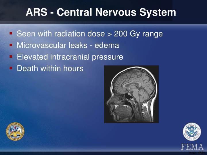 ARS - Central Nervous System