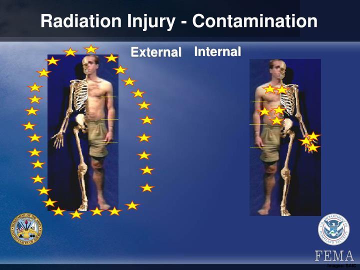 Radiation Injury - Contamination
