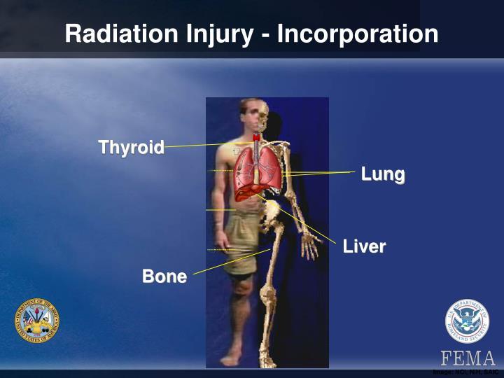 Radiation Injury - Incorporation