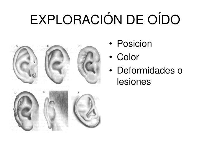 EXPLORACIÓN DE OÍDO