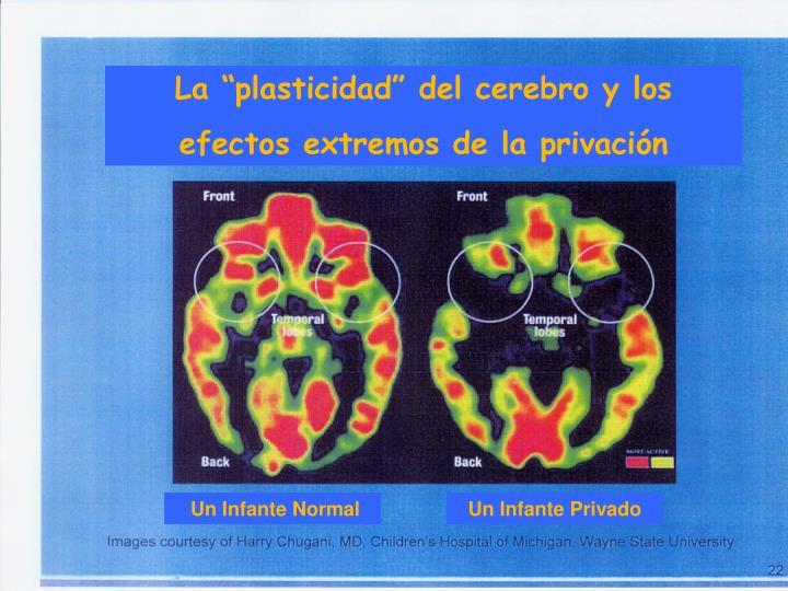 """La """"plasticidad"""" del cerebro y los"""