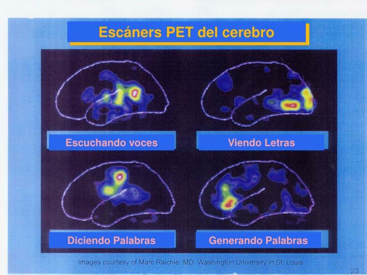 Escáners PET del cerebro