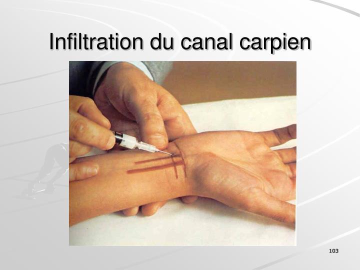 Infiltration du canal carpien