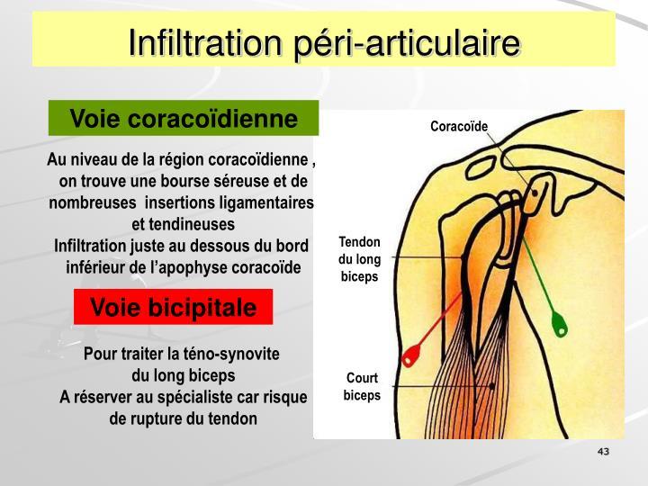 Infiltration péri-articulaire