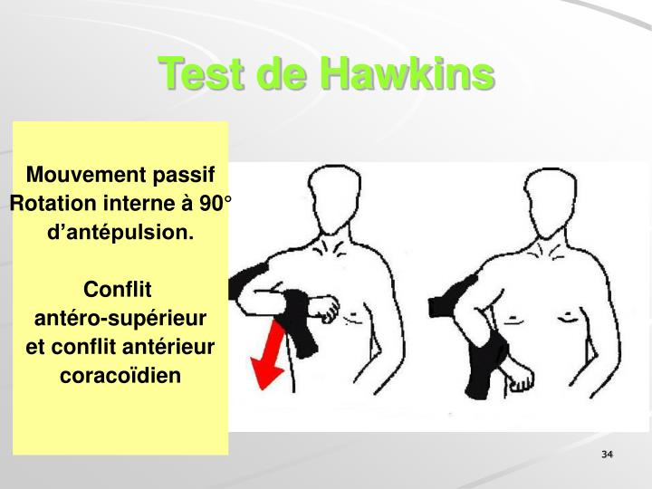 Test de Hawkins
