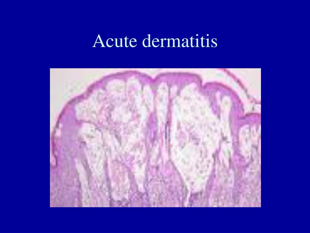 Acute dermatitis