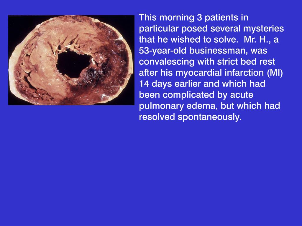This morning 3 patients in particular posed several mysteries that he wished to solve.  Mr. H., a 53-year-old businessman, was convalescing with strict bed rest after his myocardial infarction (MI) 14 days earlier and which had been complicated by acute pulmonary edema, but which had resolved spontaneously.