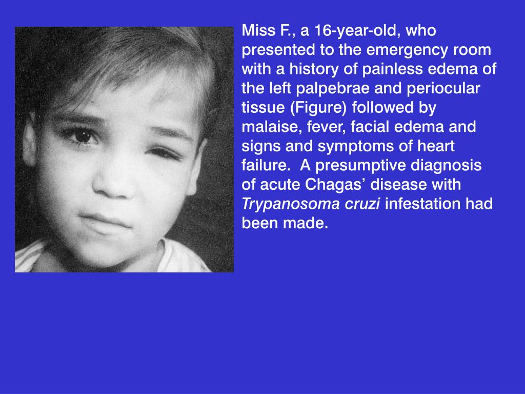 Miss F., a 16-year-old, who presented to the emergency room with a history of painless edema of the left palpebrae and periocular tissue (Figure) followed by malaise, fever, facial edema and signs and symptoms of heart failure.  A presumptive diagnosis of acute Chagas' disease with