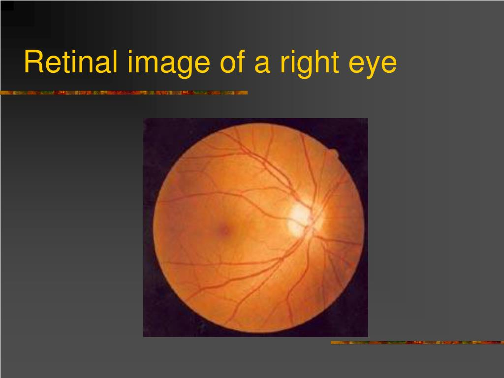 Retinal image of a right eye