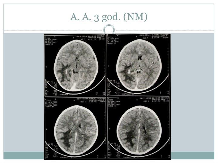 A. A. 3 god. (NM)
